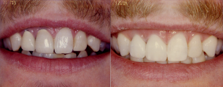 BEFORE & AFTER PORCELAIN / METAL CROWNS TO ALL CERAMIC CROWNS