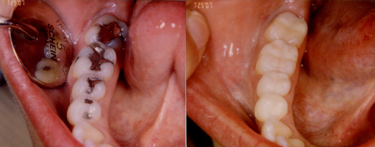 BEFORE AND AFTER SILVER TO COMPOSITE FILLINGS